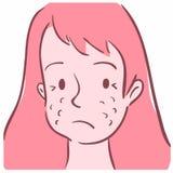 Illustration av en flickaframsida med akne royaltyfri illustrationer