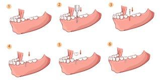 Illustration av en tand- implantat Arkivfoto