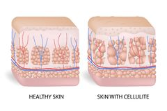 Illustration av hudtvärsnittet som visar cellulite Bildandet av cellulite Cellulite uppstår i mest kvinnlig och vektor illustrationer