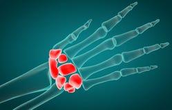 3D illustration of Carpal, medical concep vector illustration
