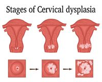Illustration of Cervical dysplasia. The three stages of cervical dysplasia - a potential premalignant condition Royalty Free Stock Photo