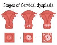 Illustration of Cervical dysplasia. The three stages of cervical dysplasia - a potential premalignant condition stock illustration