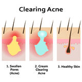 Illustration of clearing skin from acne. Stock Photo