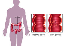Illustration of the colon cancer Royalty Free Stock Images