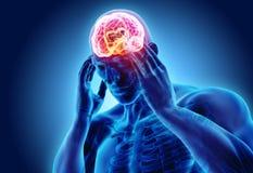 Illustration 3d des Kopfschmerzenmenschen Stockbild