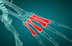 Illustration 3D des metacarpal Röntgenstrahls stock abbildung