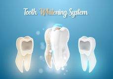 3D Realistic Vector Teeth Cleaning Process. Healthcare Stomatology Procedure Royalty Free Stock Photo