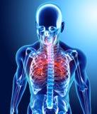 Illustration 3D von Kehlkopf-Trachea-Bronchien Lizenzfreie Stockfotos