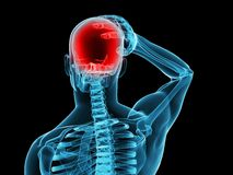 Illustration de mal de tête/migraine illustration stock