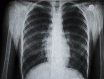 Illustration de rayon X photo libre de droits
