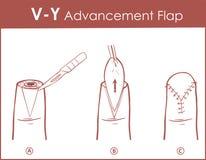 Illustration de vecteur d'un aileron d'avancement de V-Y illustration de vecteur