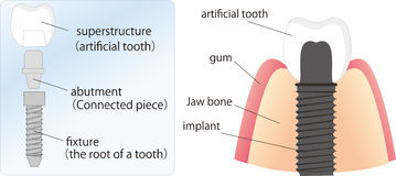 Illustration of dental implant Stock Photos