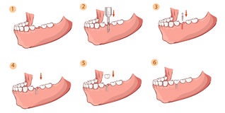 Illustration of a dental implant royalty free illustration