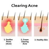 Illustration der Reinigungshaut von der Akne Stockfoto