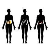 Illustration des Zu viel essens und des Alkoholschadens Vektor Abbildung