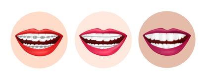 Infographic braces vector illustration