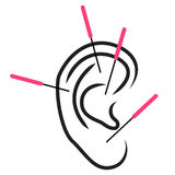 Illustration of ear acupuncture Stock Photos