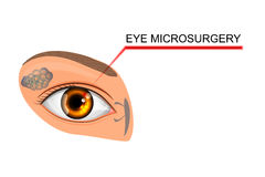 Illustration of the eye, the eyeball. microsurgery   Royalty Free Stock Image