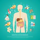 Illustration för sjukdomar för digestivkexsystem vektor illustrationer