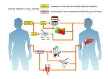 Illustration för virus- hepatit vektor illustrationer