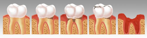 Illustration of the process of tooth decay royalty free stock image