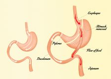 Illustration of gastric bypass. Illustration of before and after gastric bypass Stock Images