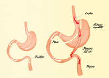 Illustration of Gastric bypass Royalty Free Stock Images