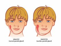 Illustration of healthy boy and one with parotitis Stock Photos