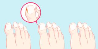 Healthy foot and ingrown nail. Illustration of a healthy foot and ingrown nail with blue background vector illustration