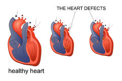 Illustration of healthy heart Royalty Free Stock Photos
