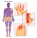 Psoriatic arthritis illustration stock photo
