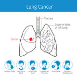 Illustration Of Human Lungs, Outline And Lung Cancer Symptoms Ic Royalty Free Stock Images