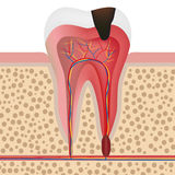 Illustration of infected tooth Royalty Free Stock Photography