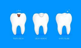 Step of tooth filling. Tooth decay, decay remove and white filling. Illustration isolated on blue background. Dental care concept Stock Photos