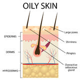 Illustration of The layers of oily skin Royalty Free Stock Photography