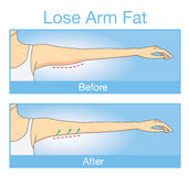 Illustration of before and after lose arm fat. Illustration about step before and after of woman arm look tightening up after lose arm fat Stock Photos