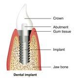 Illustration médicale d'implant dentaire sur le fond blanc illustration stock