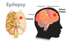 Illustration médicale d'un cerveau avec l'épilepsie illustration libre de droits