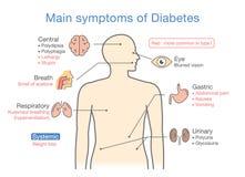 Illustration of main symptoms of Diabetes. Main symptoms of Diabetes. Illustration about diagram for medical diagnosis of people disease Royalty Free Stock Image