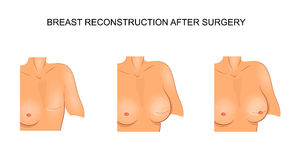 Illustration for medical publications. carcinoma. surgery Stock Images