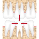 Illustration of missing tooth. Stock Photography