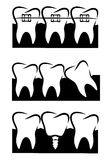 Vector illustration of dental set Royalty Free Stock Photography