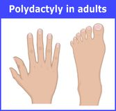 Illustration of Polydactyly in adults Stock Images