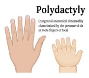 Illustration of Polydactyly Stock Photos
