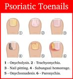 Illustration of Psoriatic toenails Royalty Free Stock Image