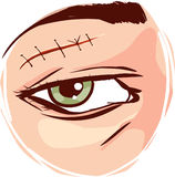 Illustration of a receiving first aid, injury or cut and sutured face. A vector image illustration Vector - Illustration of a receiving first aid, injury or cut Stock Image
