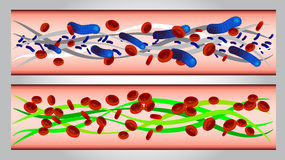 Illustration of  Red blood cells and bacteria in a Stock Images