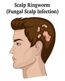 Illustration of Scalp Ringworm Royalty Free Stock Image