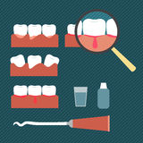 Illustration showing gum disease Royalty Free Stock Photo