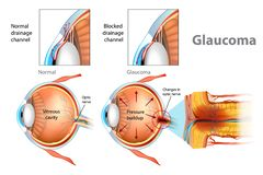 Illustration showing open-angle glaucoma. Glaucoma. Illustration showing open-angle glaucoma. Intraocular pressure in the back of the eye stock illustration